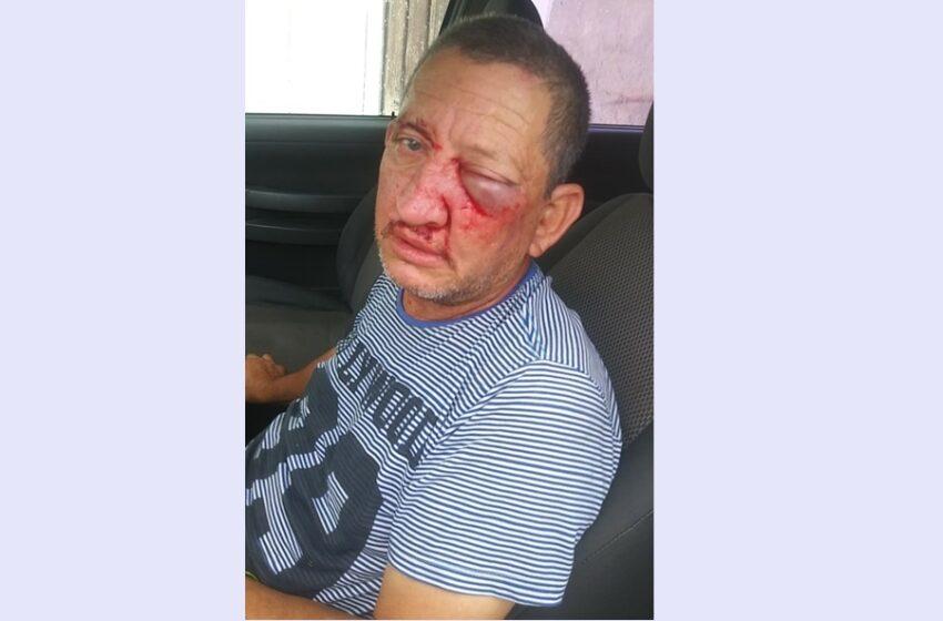 Pedrinho Filho é espancado após ser exonerado da Prefeitura de Pitanga